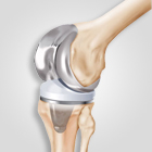 Joint Replacement in Ahmedabad