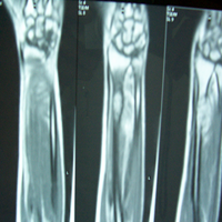 Trauma Surgeon in Ahmedabad|Joint Replacement